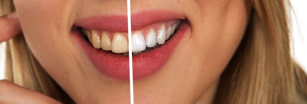 Białe zęby przegląd metod